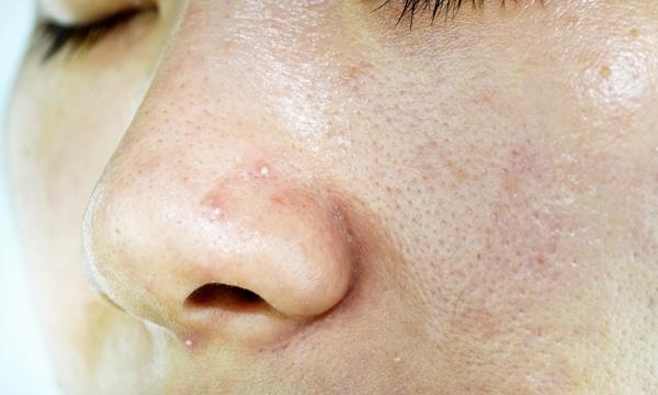 پوست بینی چرپ