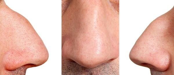 پوست بینی ضخیم